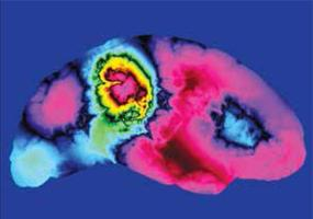 Changing Brains: Conflict Resolution, Cooperation, and...