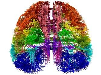 image depicting artful brain