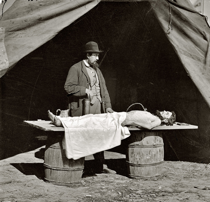 Embalming surgeon at work on soldier's body, unknown location. Civil War photographs, Circa 1861-1865.