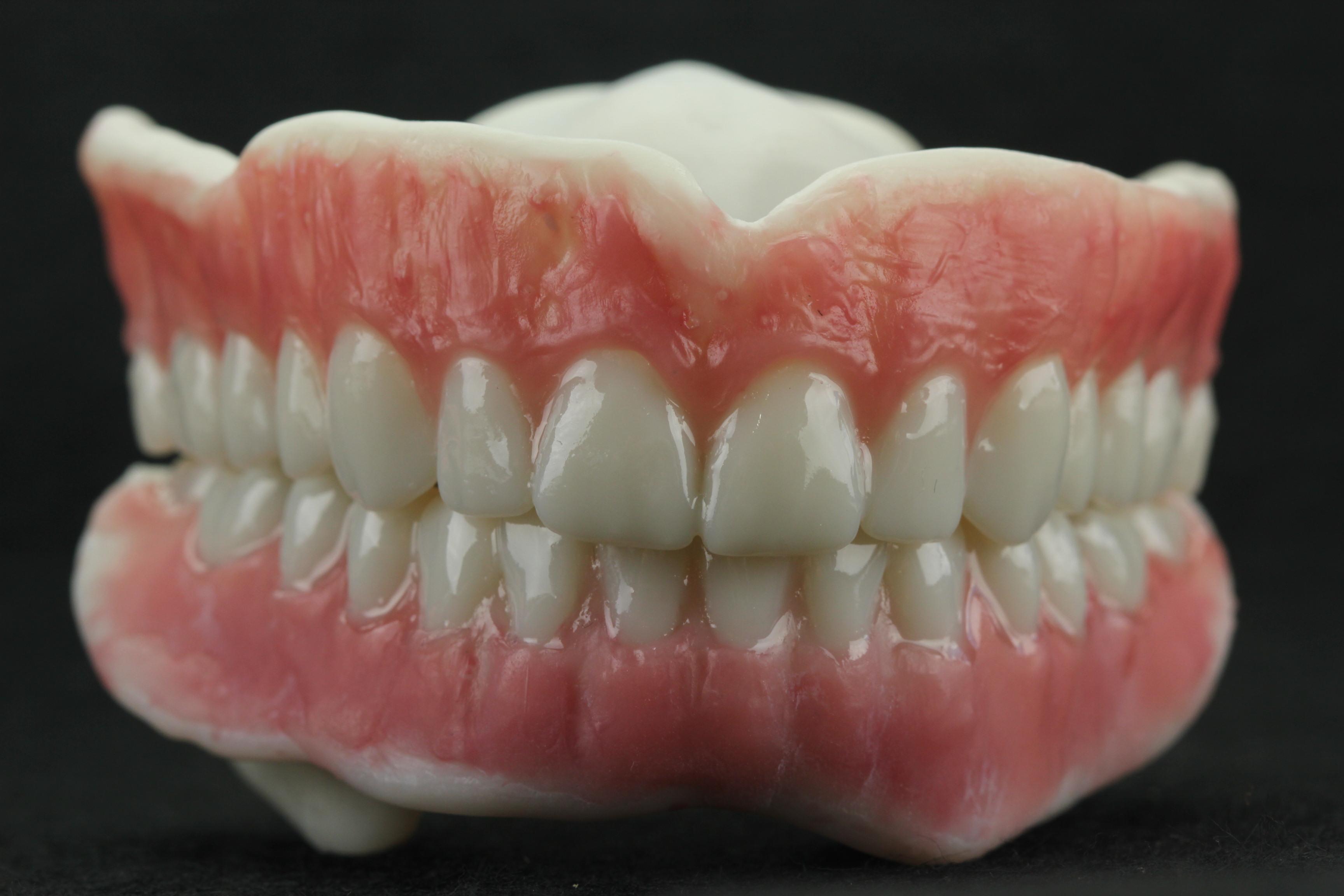 Monolithic denture with gingiva