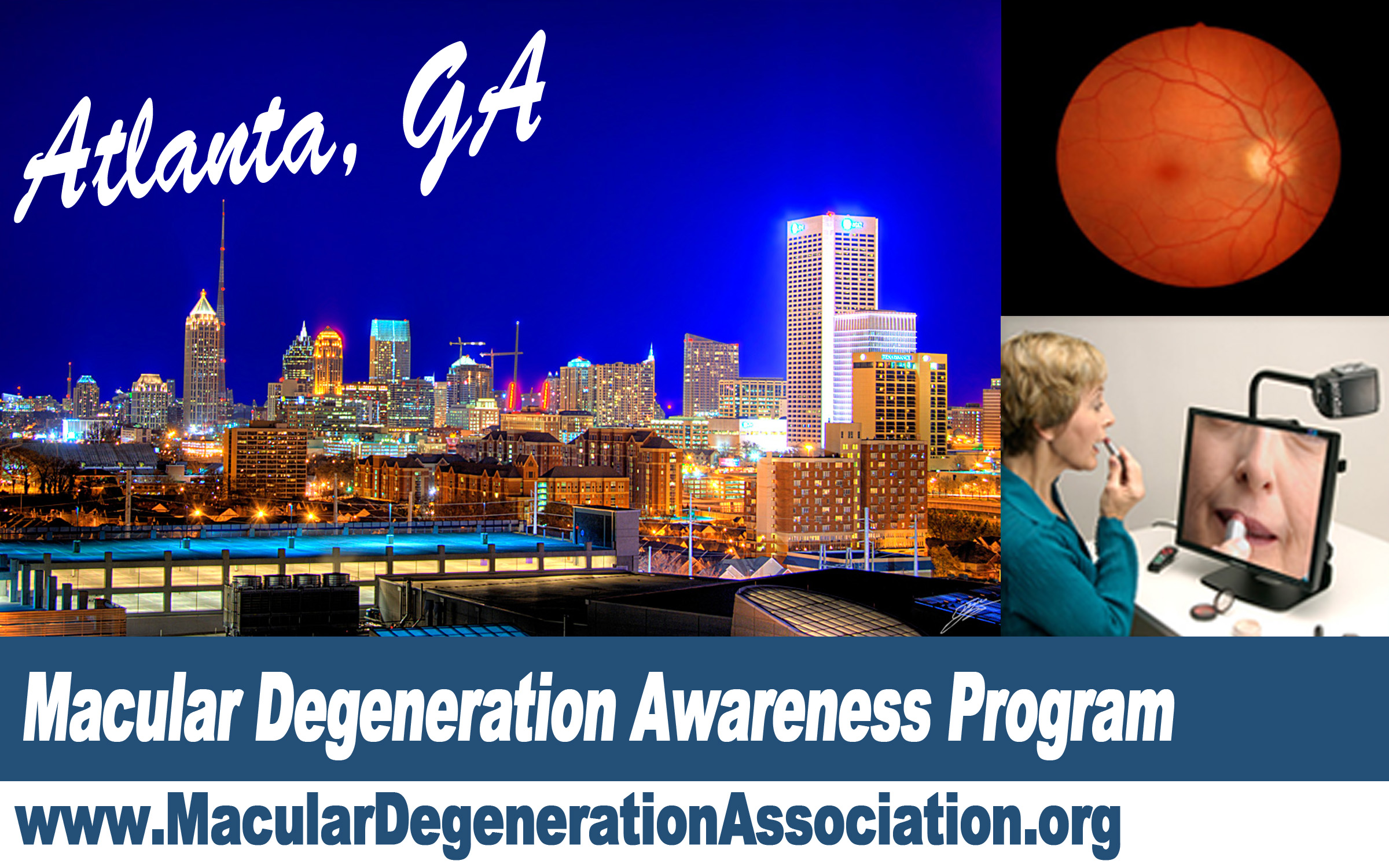 Macular Degeneration awareness program Atlanta