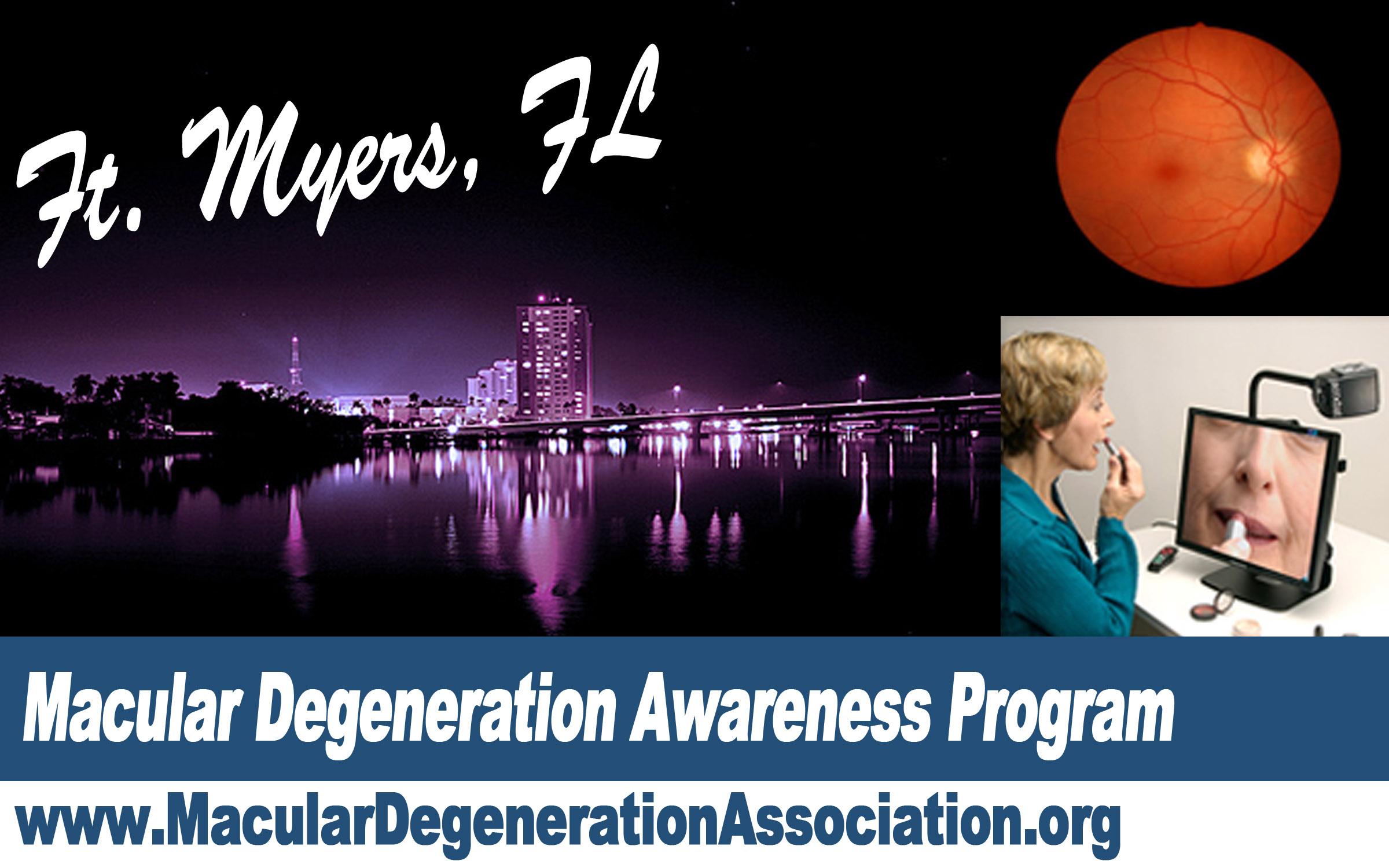Ft Myers Macular degeneration awareness program