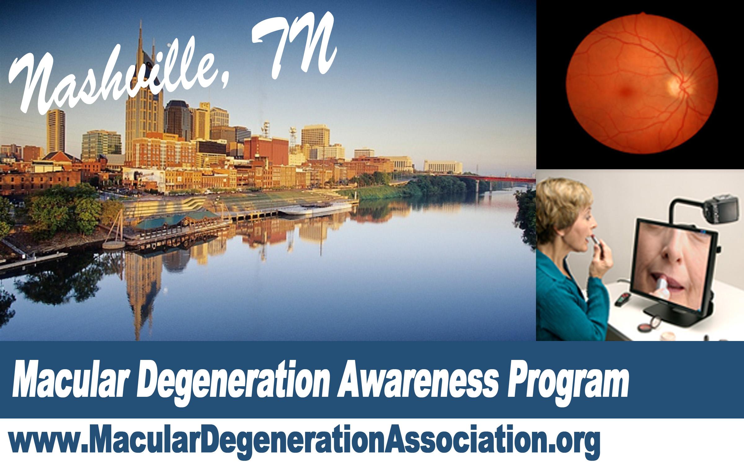 Macular Degeneration awareness program Nashville