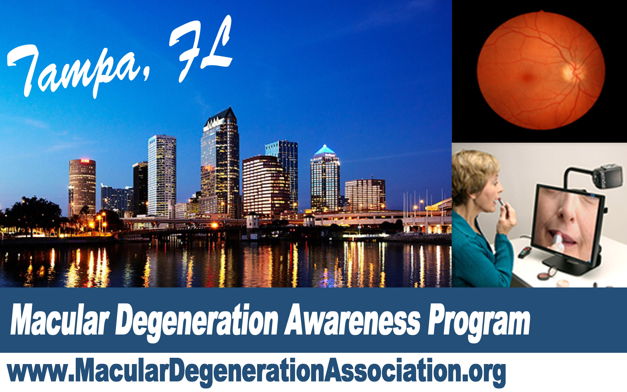 Macular Degeneration awareness program Tampa