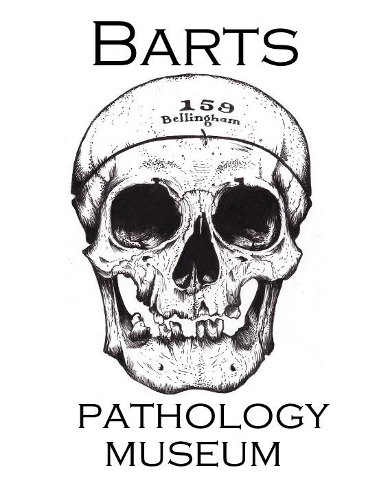 St Bart's Pathology Museum