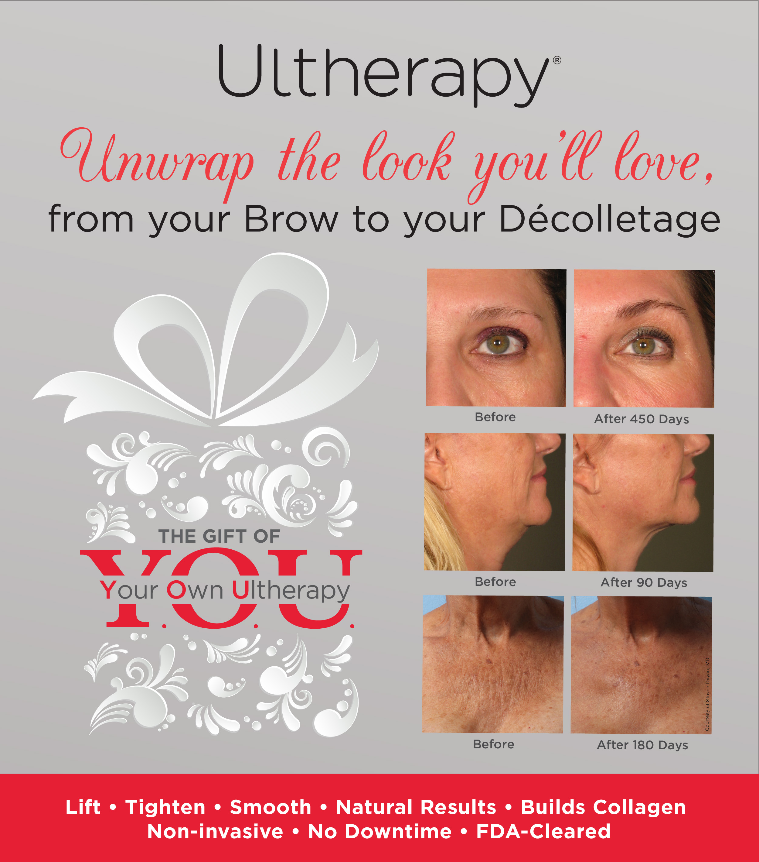 Before and After of Ulthera