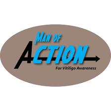 vitiligo man of action