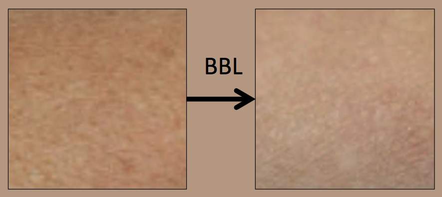 Effects of BBL therapy on aged skin