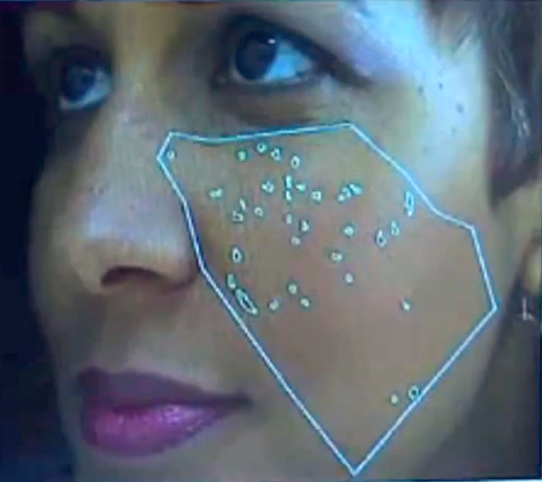 Facial skin analysis system