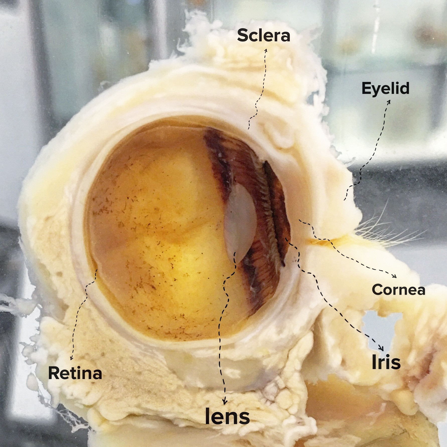 Dissected eye showing the pasrts relevant to sight.