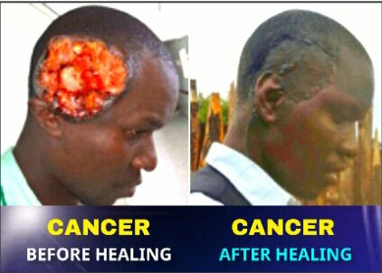 Cancer Healed