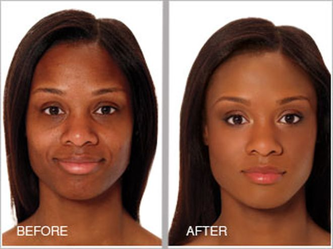 black skin chemical peel