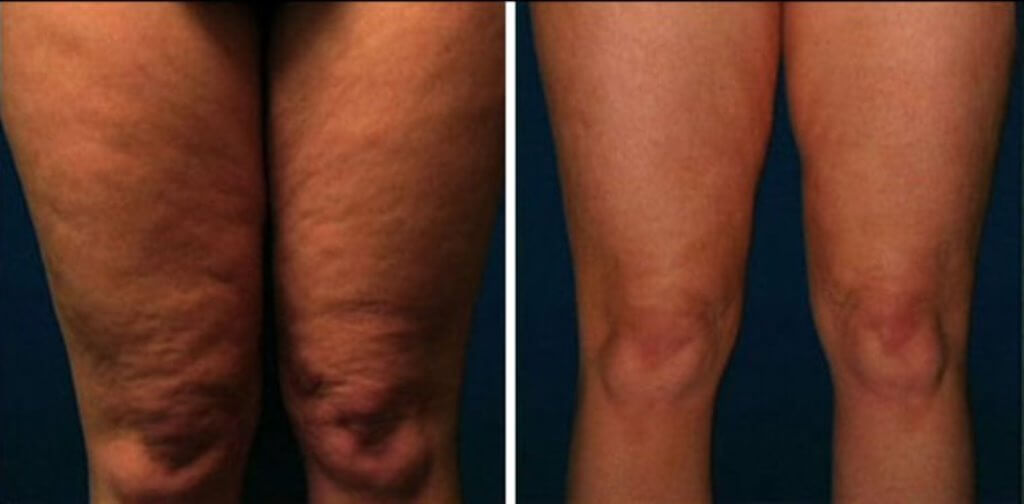 thigh cellulite removal