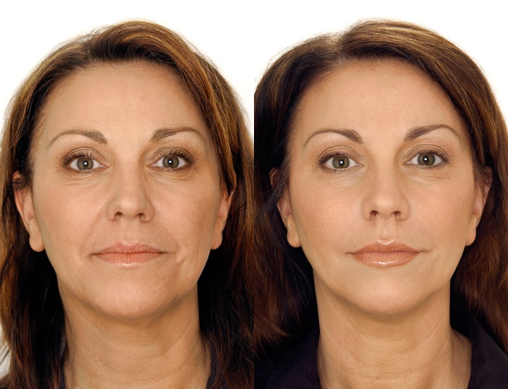 restylane® before and after