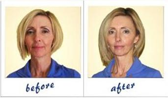 Energetic Face-lift  & Correcting Vision June 4, 2012 -...
