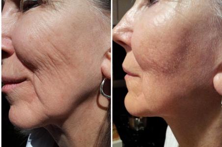 sagging skin, facial lines microneedling