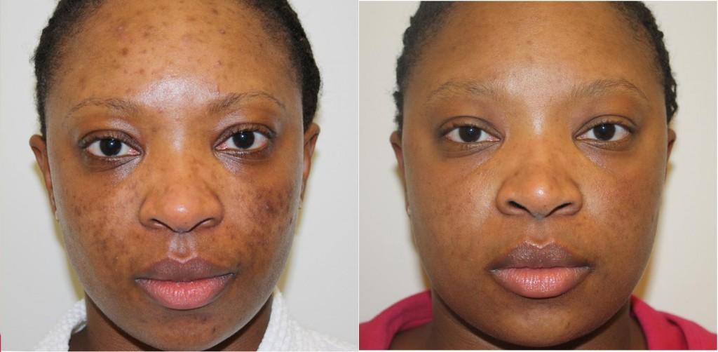 Black Skin  Microneedling Acne scar removal