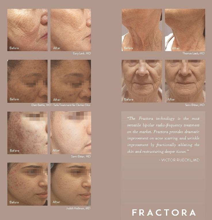 Acne Microneedling Black Skin