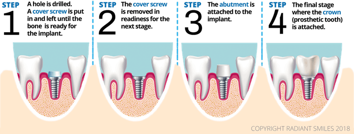 Dental Implants Perth Cost Starting $1790 - Same Day Teeth Implants