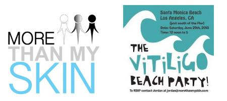 More Than My Skin: A Vitiligo Beach Party