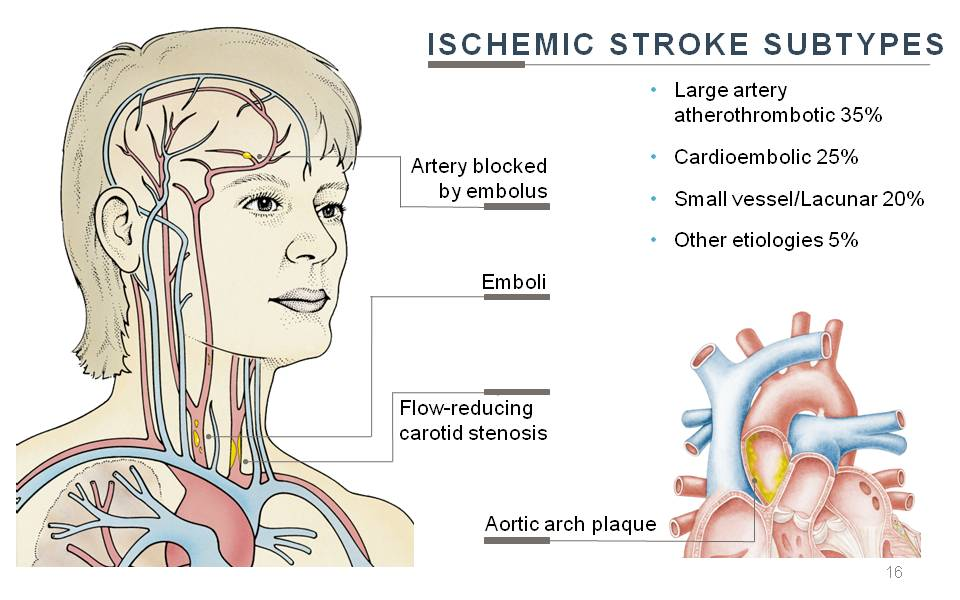 Stroke Webinar Screen Shot
