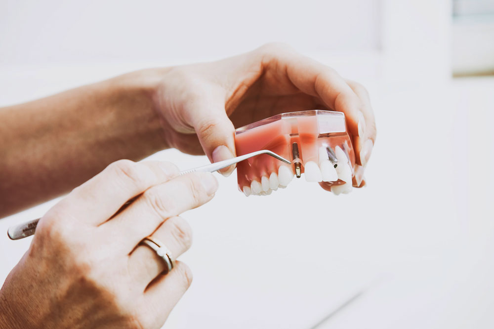 All-on-4 Dental Implants Perth