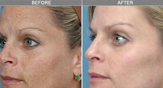 Skin Rejuvenation Herndon Virginia