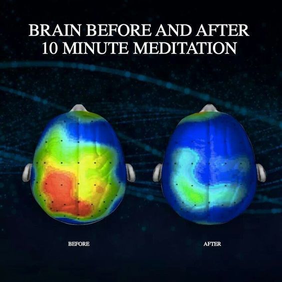 Effect on the Brain after Meditation