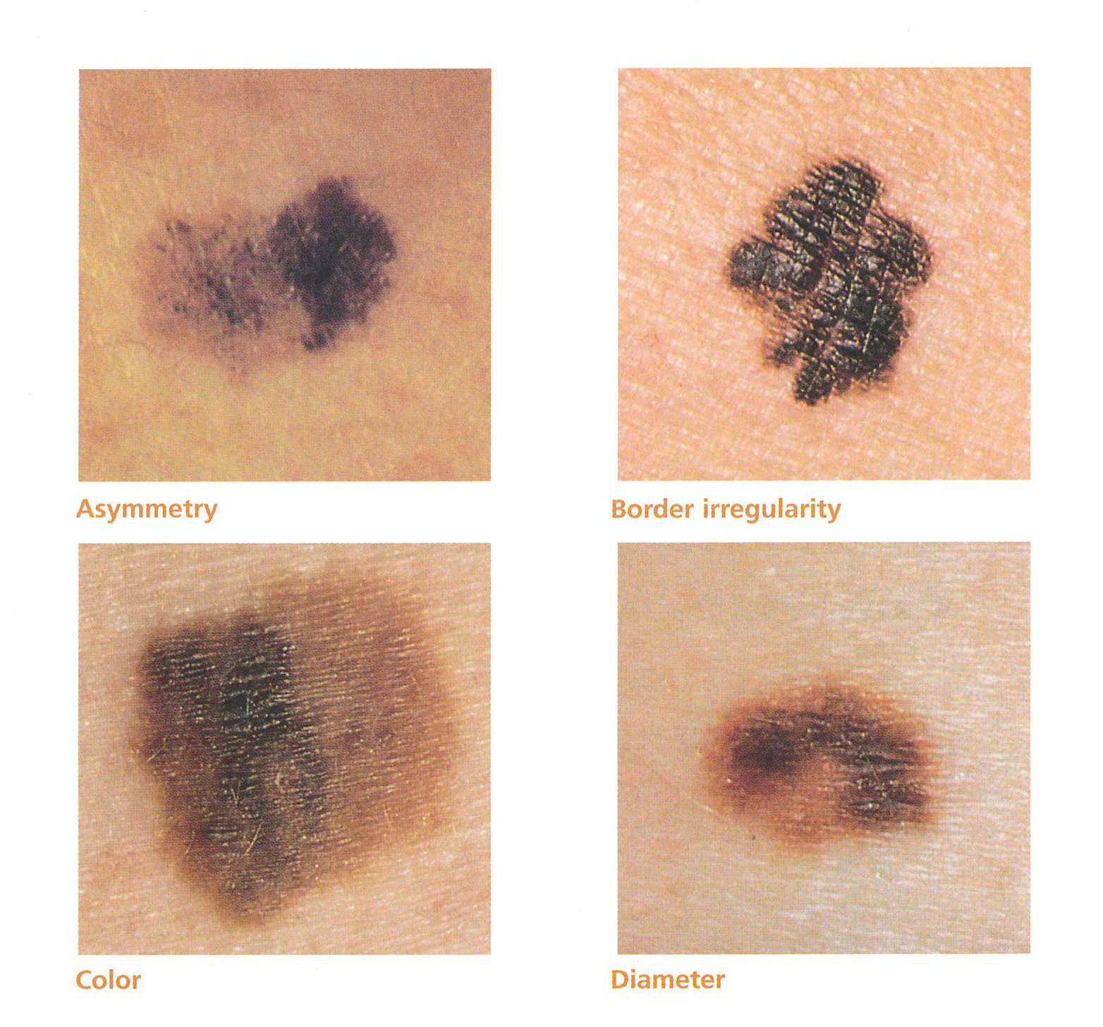Skin Cancer Screening Examples