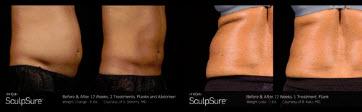 SculpSure Body Contouring