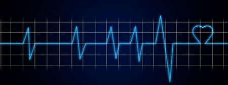 Basic ECG & Rhythm Strip Interpretation