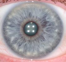 Iridology Workshop: Your Eyes Tell Stories
