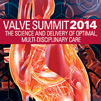 Valve Summit 2014: The Science & Delivery of Optimal,...