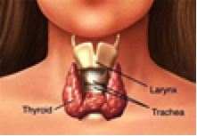 Thyroid Solutions