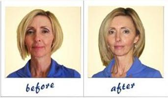 Energetic Face-lift  & Correcting Vision - May 26 - Barrie