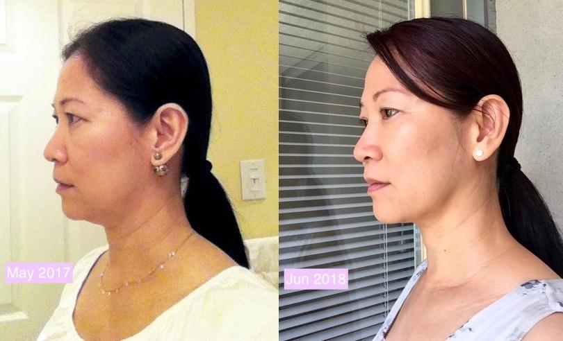 No More Double Chin And Turkey Neck With Face Yoga 8 Feb 2020