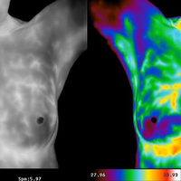 Breast Health and Thermography