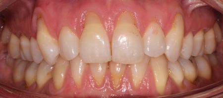SWHATS - Gingival Recession: are there predictable...